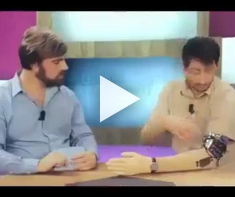 MÃO BIONICA PROGRAMADA PRA DESCABELA O PALHAÇO