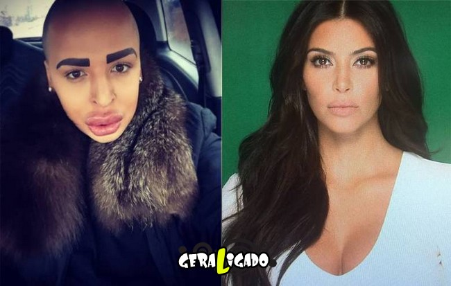 Homem gasta mais de R$ 420 mil para ficar parecido com Kim Kardashian1