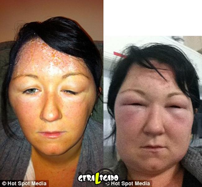 Pessoas que tiveram  reações alérgicas a tinturas de cabelo1