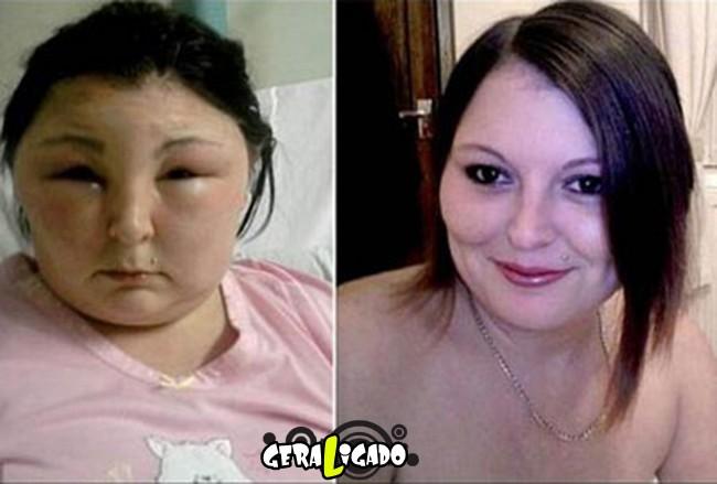 Pessoas que tiveram  reações alérgicas a tinturas de cabelo3