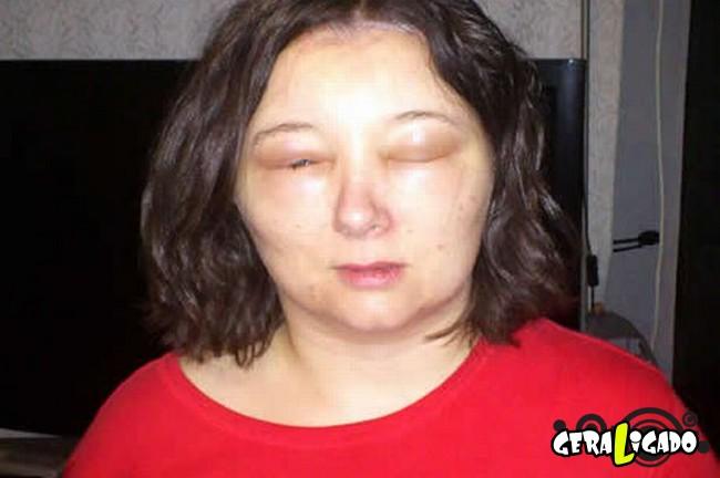 Pessoas que tiveram  reações alérgicas a tinturas de cabelo5