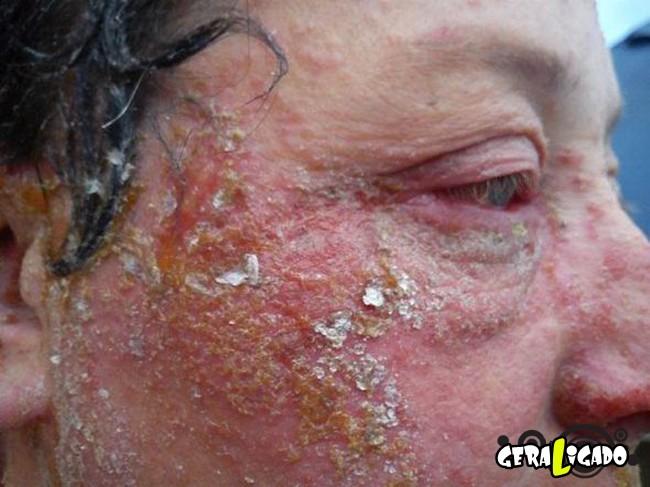 Pessoas que tiveram  reações alérgicas a tinturas de cabelo7