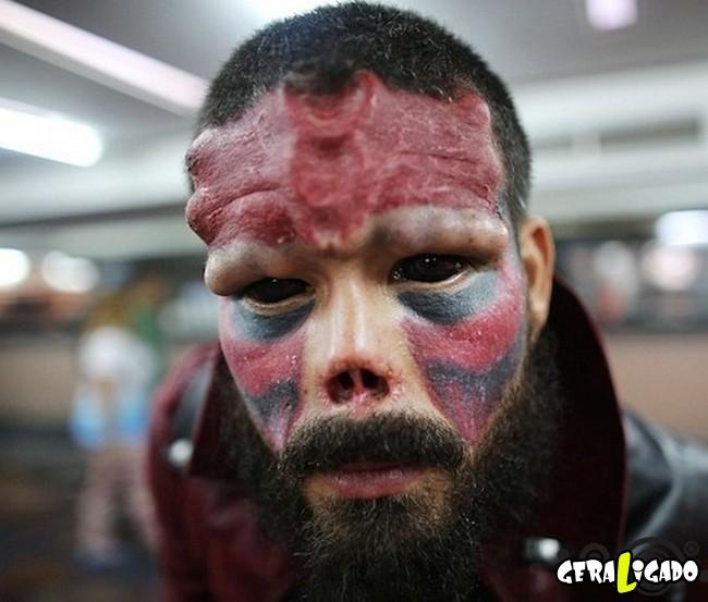 Homem faz cirurgia para ficar igual ao 'Caveira Vermelha'8