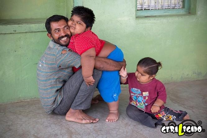 Homem pobre vende o próprio rim para pagar tratamento para filhos obesos4