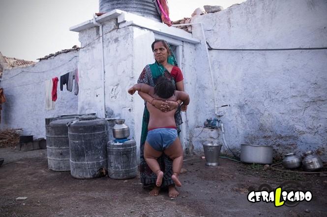 Homem pobre vende o próprio rim para pagar tratamento para filhos obesos5