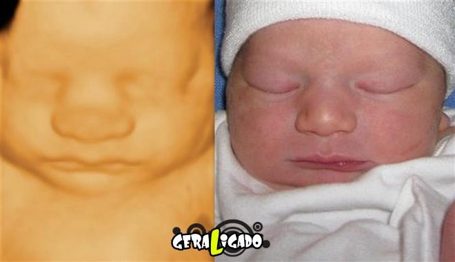 15 imagens de bebês antes e depois do ultrassom 3D15