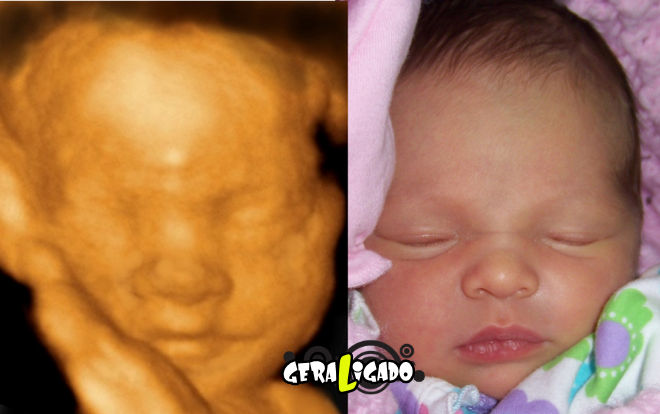 15 imagens de bebês antes e depois do ultrassom 3D8