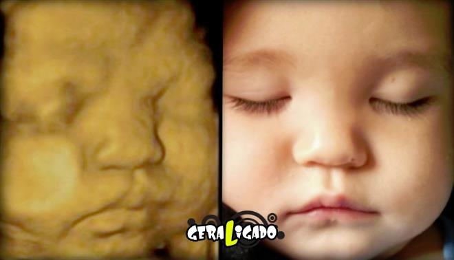 15 imagens de bebês antes e depois do ultrassom 3D9