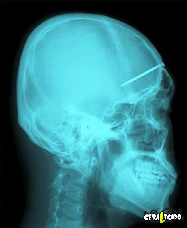 8 Coisas estranhas encontradas em um raio-x6