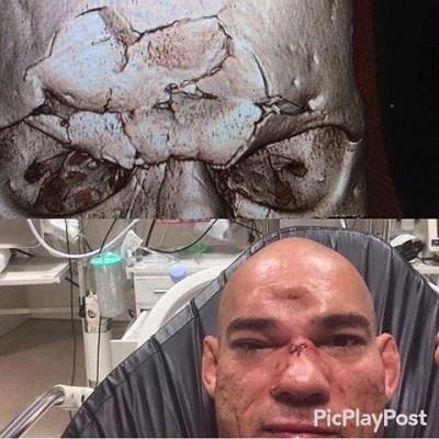 Evangelista Cyborg sofreu afundamento de crânio após nocaute de Michael Page
