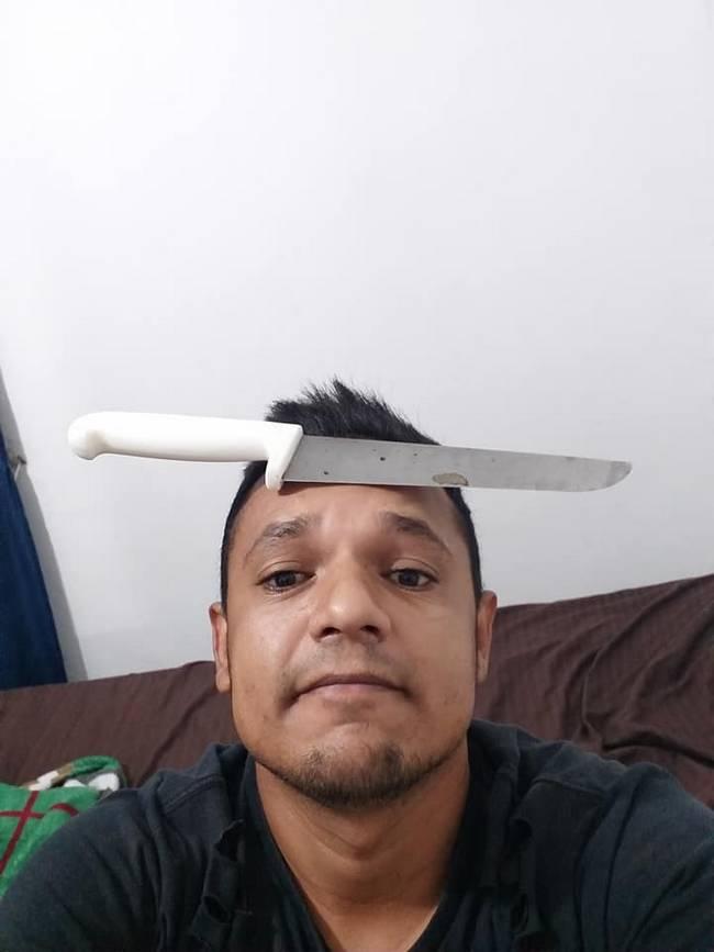 Ter testa grande é ruim, eles disseram6